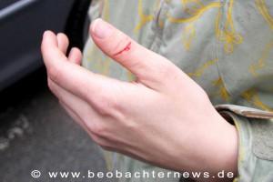 Verletzte Fahrerin des Lautsprecherwagens